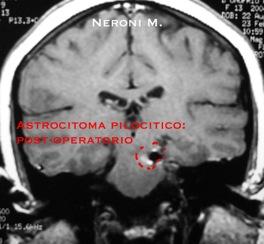 Astrocitoma02