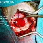 Granuloma Eosinofilo 3