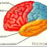 Neoplasie-Cerebrali