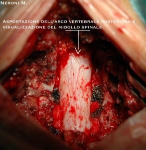 Spondilosi Cervicale 4