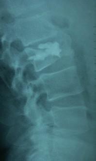 trauma cifoplasty