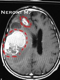 Astrocitoma03