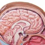 Craniopharyngiomas EV