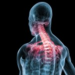 denver chiropractor whiplash treatment