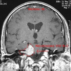 Neurinoma acustico 1