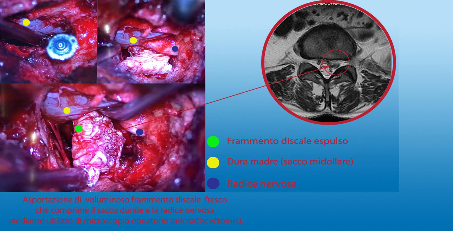ernia-discale-espulsa